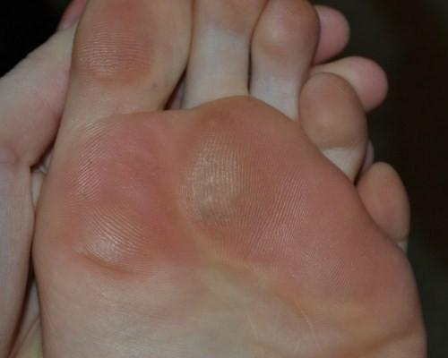 Bursita picioarelor - Artrită