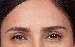 Alexandra's frown after botox treatment