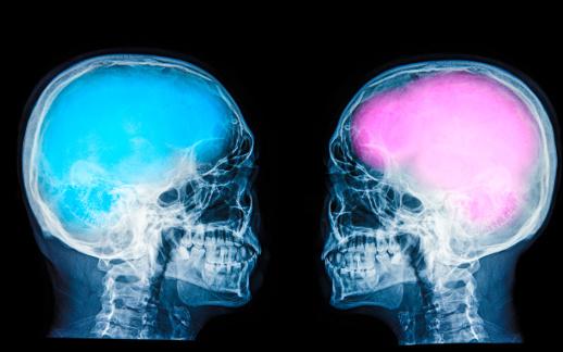 Pink brain, blue brain © Tyron Molteni | dollarphotoclub.com