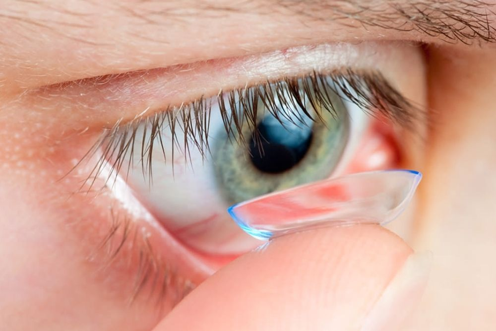 Contact Lens-Related Fungal Infections