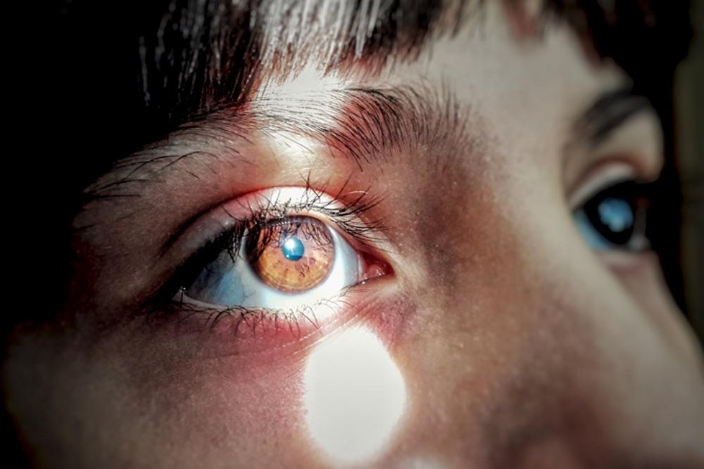 Eye Floater Types