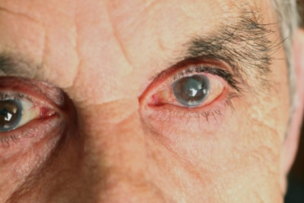 Diabetic Retinopathy and Diabetic Macular Edema