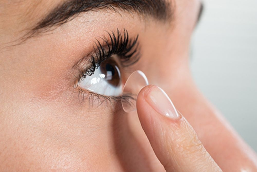 lasik fix scars from contact lenses