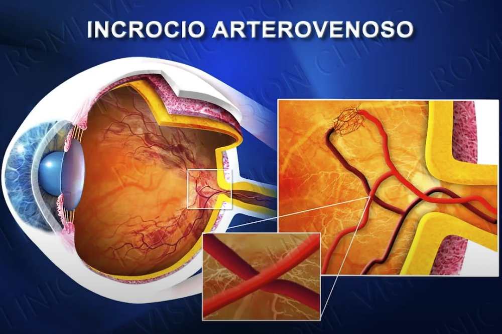 Occlusione della vena retinica centrale e terapia laser