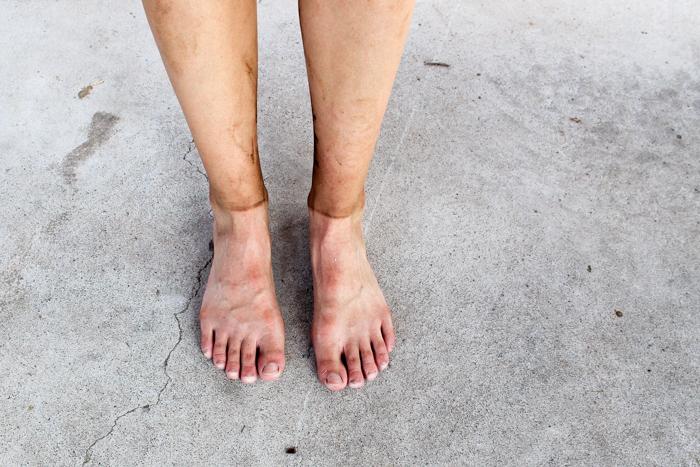 feet after running 25k