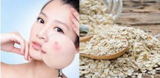 Công dụng của bột yến mạch: Loại bỏ mụn