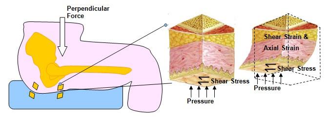 Fig 4 Example of skin deformities
