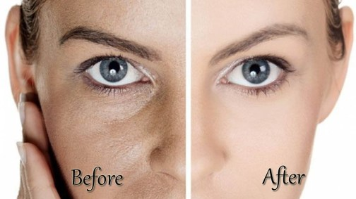 Skin Pores