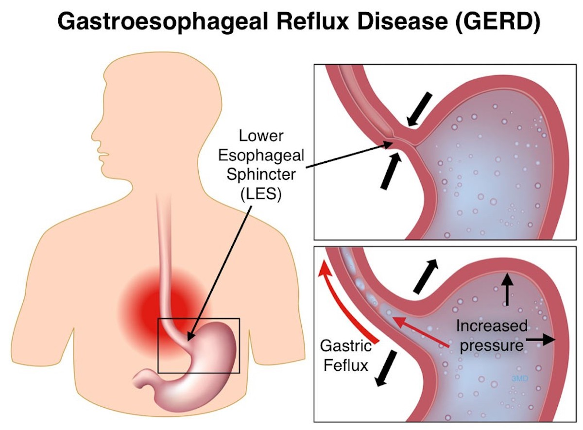 hight resolution of gastroesophageal reflux disease