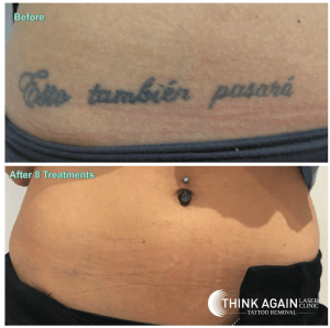 100 tattoo removal guaranteed tattoo removal before for Tattoo reviews sydney