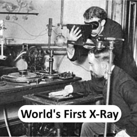 World's first X-Ray - thinkwitty.com