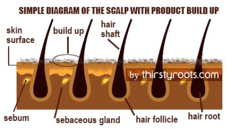 scalp-and-hair-follicle-build-up-diagram