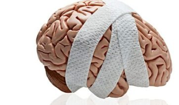 Human brain wrapped in bandages.