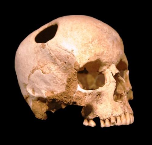Skull_hole