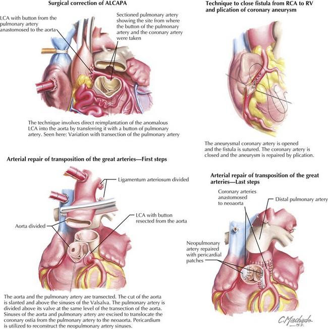 Congenital Coronary Anomalies Thoracic Key