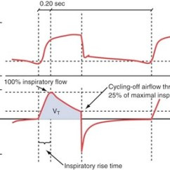 Mechanical Wave Diagram Wiring Lights In Parallel Invasive Ventilation | Thoracic Key