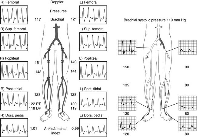 Peripheral Angiography and Percutaneous Intervention