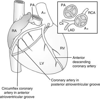 Surgery for Congenitally Corrected Transposition of the