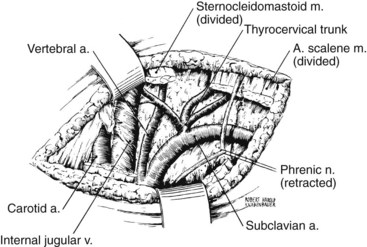 Anatomy and Surgical Exposure of the Vascular System