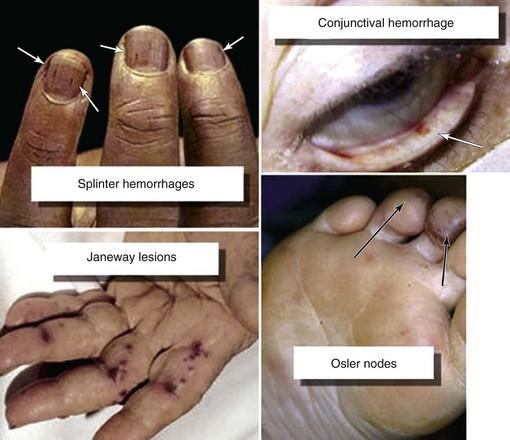 Image result for infective endocarditis symptoms