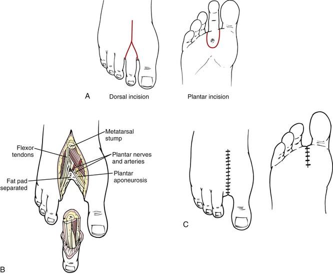 partial amputation toe cpt code