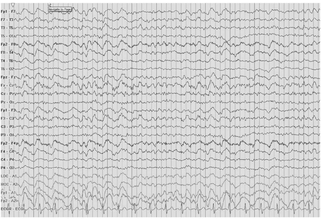 EEG in Focal Encephalopathies: Cerebrovascular Disease