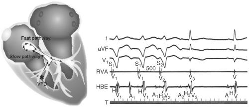 Supraventricular tachycardia (SVT) electrophysiologic ...