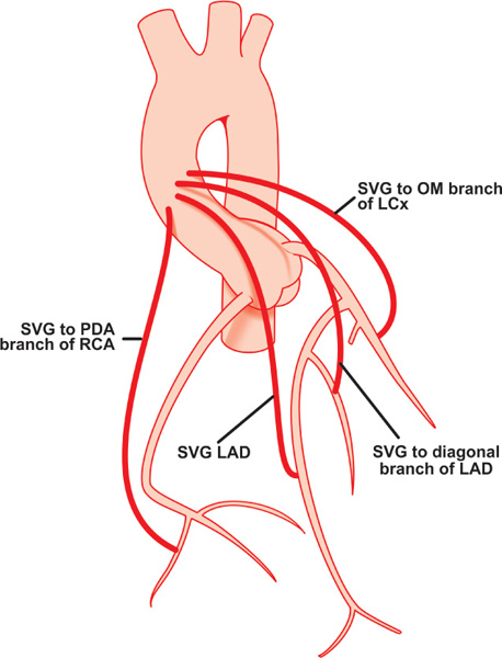 coronary arteries diagram branches of evolution timeline angiography bypass grafts | thoracic key