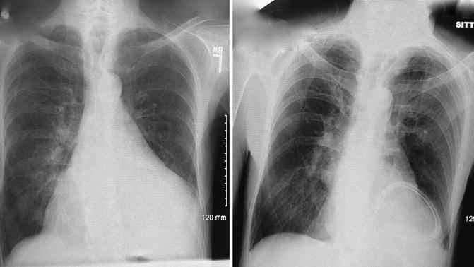 Surgical Management of Pericardial Disease | Thoracic Key