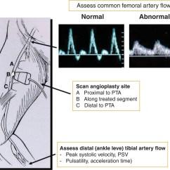 Diagram Of A Heart Bypass Graft Yamaha Gauge Wiring Surveillance After Peripheral Artery Endovascular