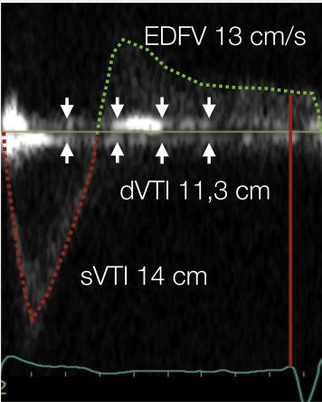 Pulsed-Wave Doppler Recordings in the Proximal Descending