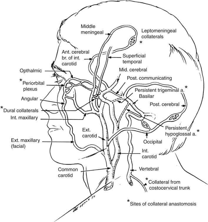 Relevance Of External Carotid Artery Disease In Internal Carotid
