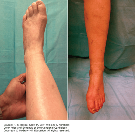 Infrapopliteal Disease