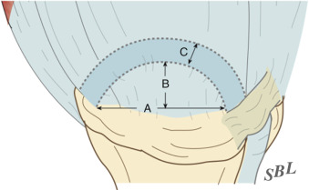 Rotator Cuff Cable And Crescent