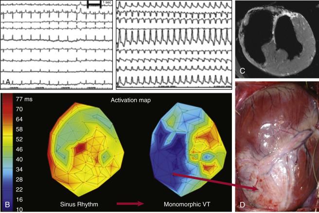 Arrhythmias and Sudden Cardiac Death After Myocardial