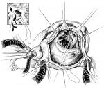 Coronary Artery Anomalies in the Adult