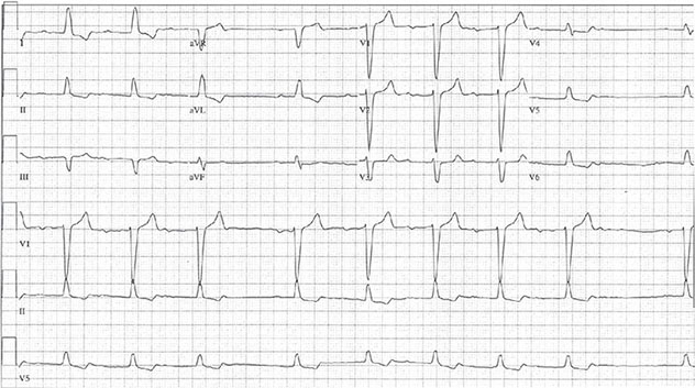 Diagram shows ECG diagnostic criteria on atrioventricular block as PR interval which is being shortest dropped beat and lateral T wave inversion.