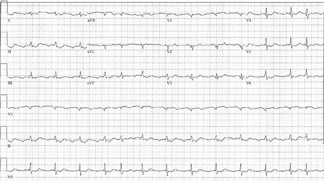 Diagram shows ECH diagnostic criteria of atrial fibrillation with absence of P wave and irregularly irregular ventricular response.