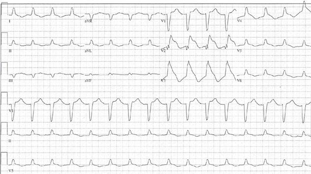 Diagram shows ECG diagnostic criteria of acute anterior ST elevation myocardial infarction in V2 and V3.