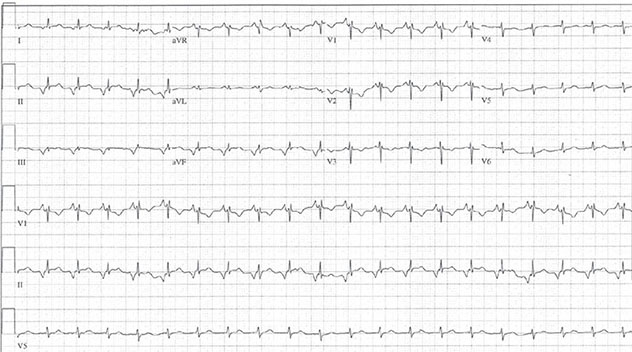 Diagram shows ECH diagnostic criteria of junctional tachycardia along with P waves which are inverted.