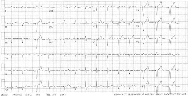 Diagram shows ECH diagnostic criteria of atypical atrial flutter with 3:1 conduction with intermittent RV pacing.