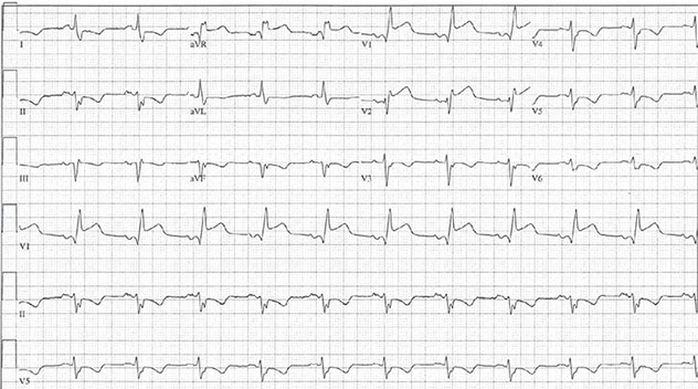 Diagram shows ECH diagnostic criteria of acute anterior STEMI along with Q waves and ST elevation in 3-4mm interval.