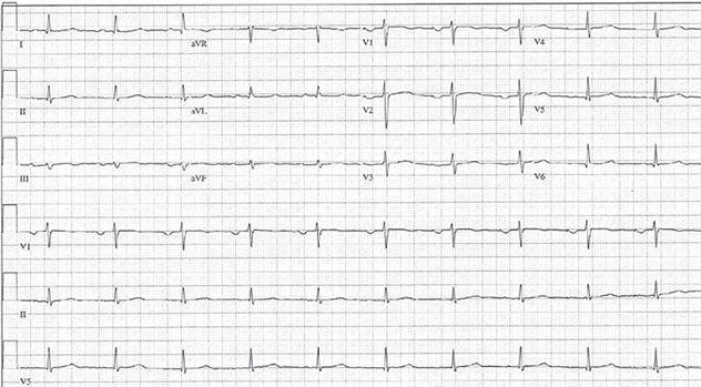 Diagram shows ECH diagnostic criteria of sinus rhythm with low QRS voltage.
