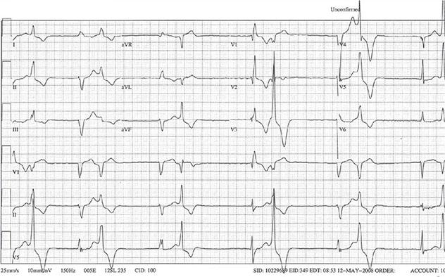Diagram shows ECH diagnostic criteria of junctional rhythm with ventricular bigeminy.