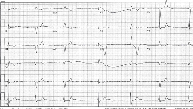 Diagram shows ECH diagnostic criteria of junctional rhythm with RBBB along with beats 1, 4, and 5.