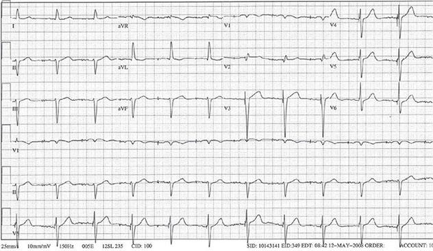 Diagram shows ECH diagnostic criteria of atrial pacing ventricular tracking.