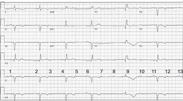 Diagram shows ECH diagnostic criteria of high-grade AV block having P waves.