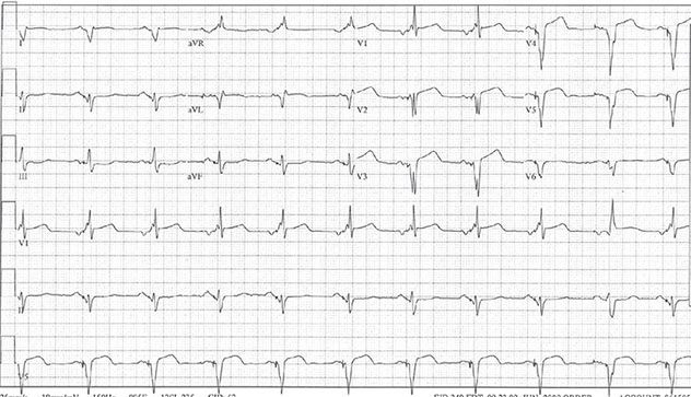 Diagram shows ECH diagnostic criteria of BiV pacer with atrial and LV pacing.