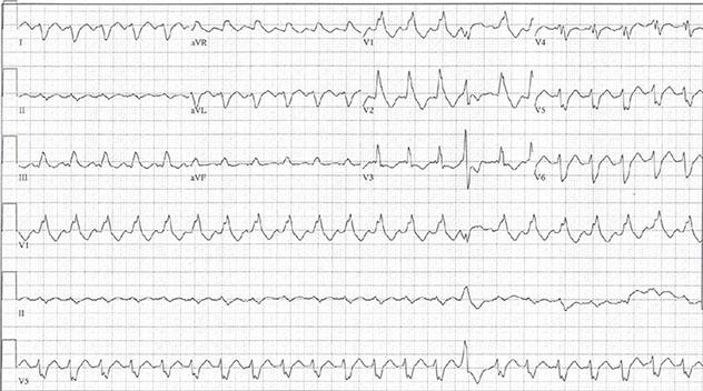 Diagram shows ECH diagnostic criteria of complex tachycardia at rate of 140 bpm.