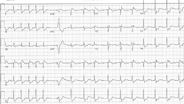 Diagram shows ECH diagnostic criteria of atrial fibrillation for first five beats.